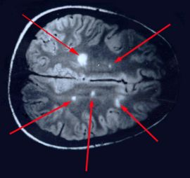 Lyme-Multiple-sclerosis